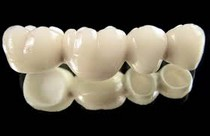 La couronne est la partie visible de la dent, il existe plusieurs sortes de couronnes dentaires et pour différentes situations.