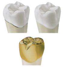 La couronne dentaire tout céramique est celle que nous préconisons dans notre cabinet, mais d'autres types de couronne dentaire à Montpellier peuvent être utiles.