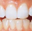 La parodontie : il est indispensable de consulter si vos gencives saignent, se rétractent ou si vous avez l'impression que vos dents se déchaussent.