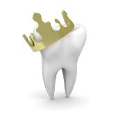 Le Dr. Philippe Dubois à Montpellier vous explique les couronnes dentaires sur implant.