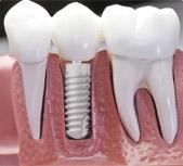 Définition de l'implant dentaire