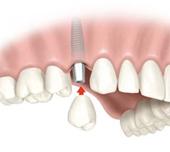 Les prothèses dentaires sur implants dentaires