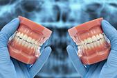 Avec la MCI il est possible de nos jours de mettre en charge pour l'édenté complet les implants le jour même.